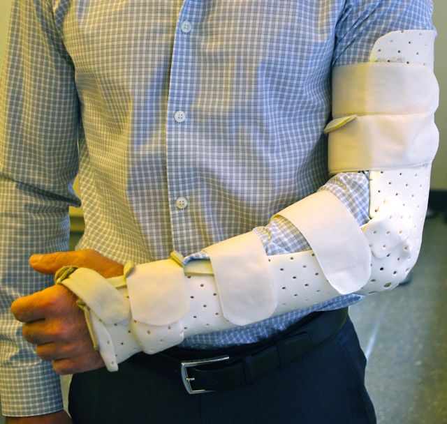 splint for olectranon fracture