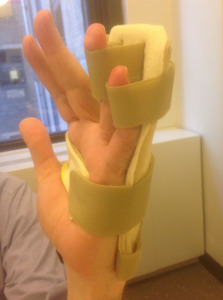 static progressive PIP extension splint side