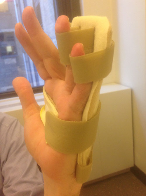 static progressive pip extension splint for finger fracture dislocation grand central physical