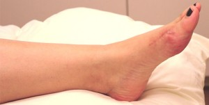bunionectomy scar